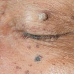 Lucent Skin Tag Remover Reviews
