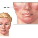 revitol rosacea treatment 150x150 Finding The Best Treatment For Rosacea
