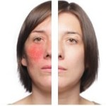 Finding The Best Treatment For Rosacea