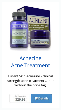 Lucent Skin Acnezine Review Acne Treatment At It S Best
