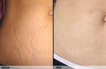 Lucent Skin Stretch Mark Cream Results