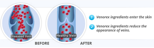 Venorex Varicose Veins Cream Review