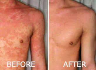 lucent skin eczema cream results