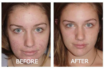 lucent skin exfoliator results