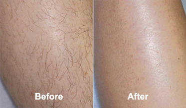 lucent skin hair removal cream results