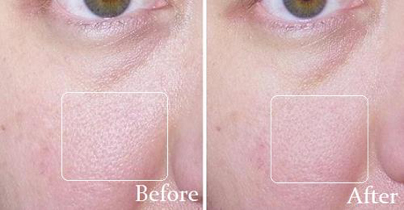 lucent skin pore minimizer results