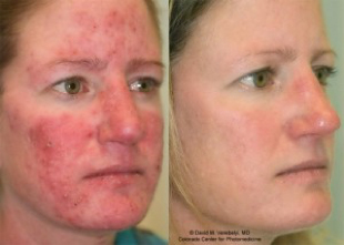 lucent skin rosacea cream results